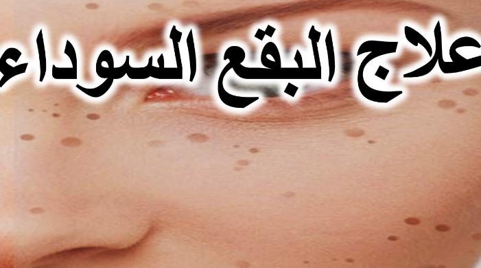 Photo of ماسكات الوجه لازاله البقع والتخلص من مشاكله