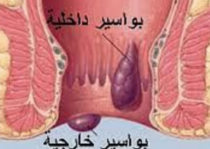 أعراض مرض الناسور